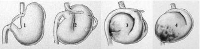 Stadia van de maagkanteling.